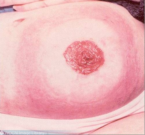 Contact Dermatitis: Peristomal Skin Complications