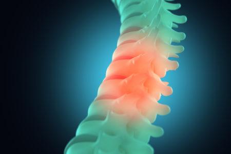 Spinal Cord Injury Lesiones de la Médula Espinal