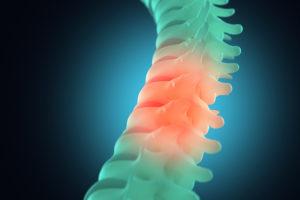 10 hechos sobre lesión de la médula espinal