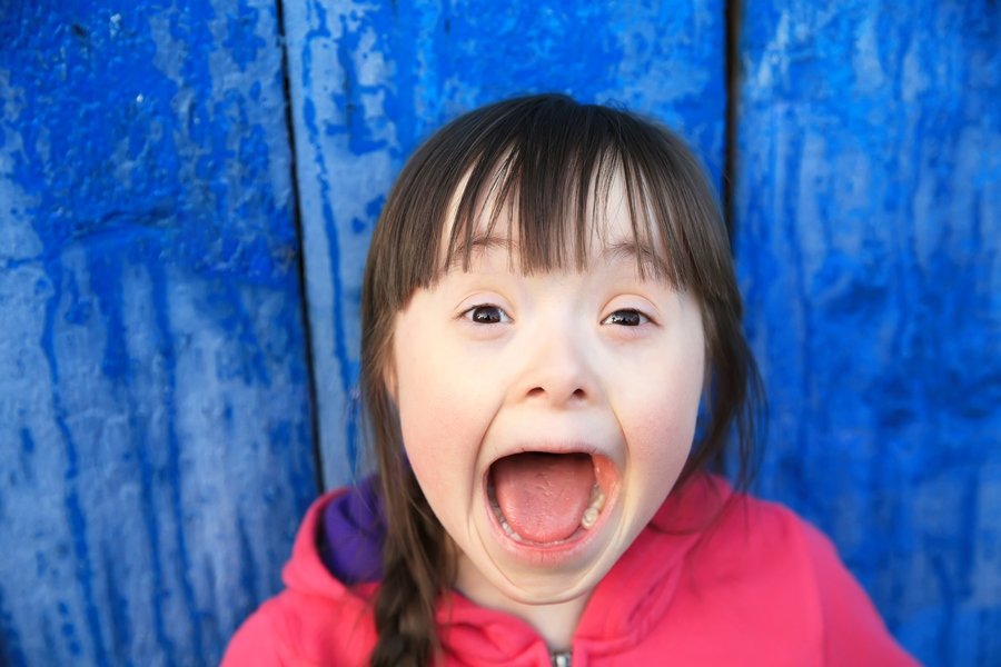 Down Syndrome: When Down Syndrome and Autism Collide