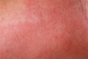 What is Incontinence-Associated Dermatitis (IAD)? Assessment, Prevention and Management (Webinar)
