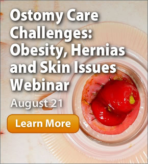 Ostomy Care Challenges: Obesity, Hernias and Skin Issues Webinar:  August 21