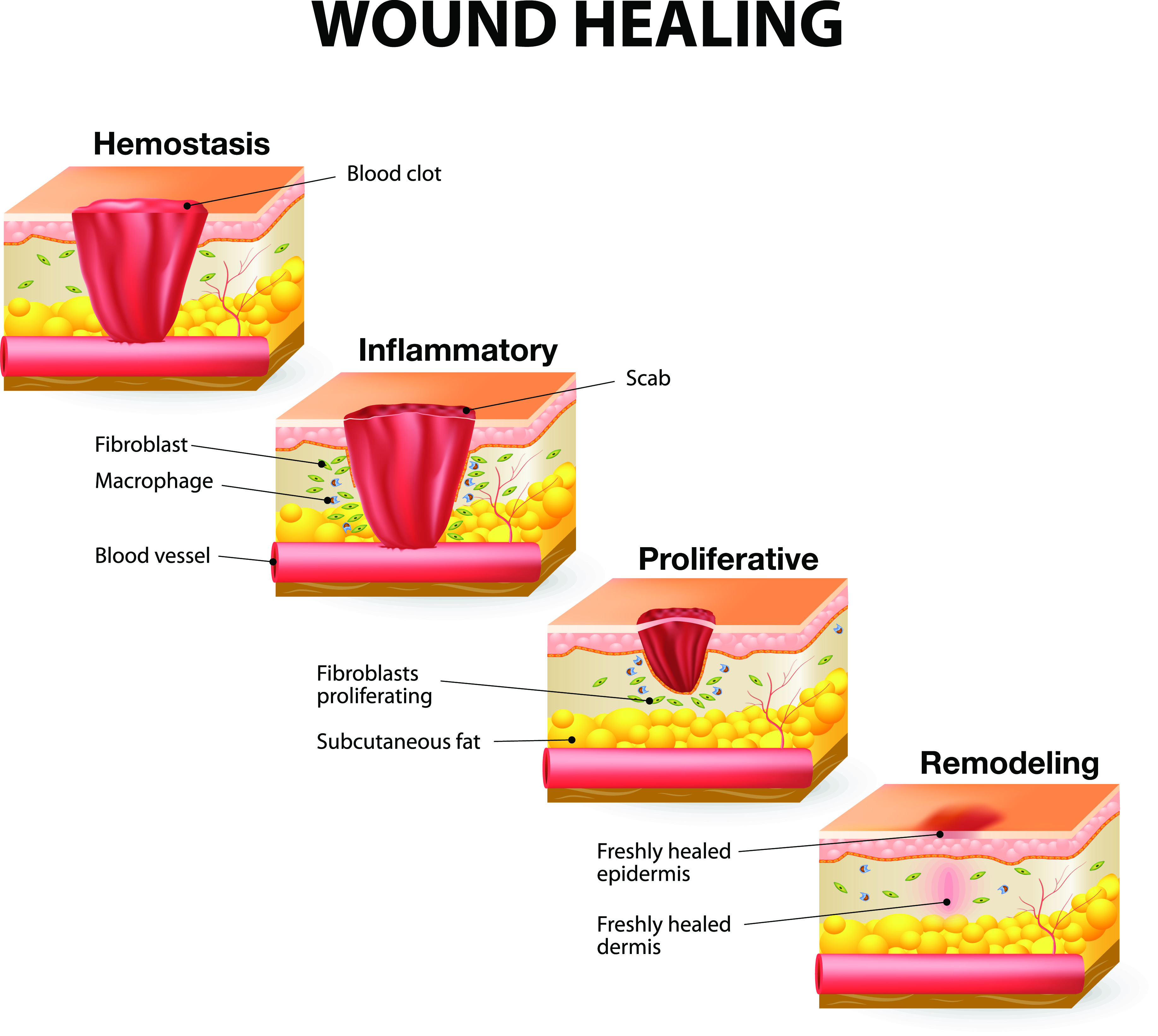 How Wounds Heal: The 4 Main Phases of Wound Healing   Shield HealthCare