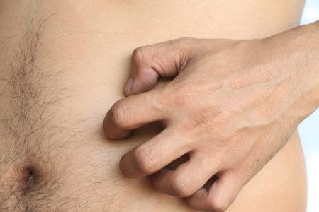 Peristomal Skin Complications