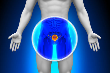 Common Urological Issues